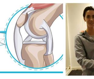 Rehabilitacja po zabiegach artroskopowych kolana – uszkodzenie więzadła krzyżowego przedniego