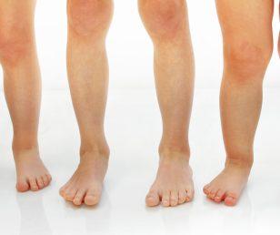 Wady kończyn dolnych- znaczenie fizjoterapii, podologii, wkładek ortopedycznych